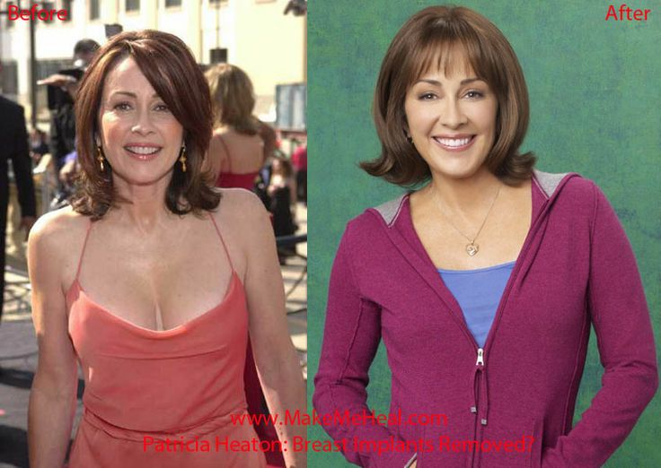 patricia heaton plastic surgery before and after - http://www.starcelebsurgery.com/2014/02/patricia-heaton-plastic-surgery-before-and-after/?Pinterest