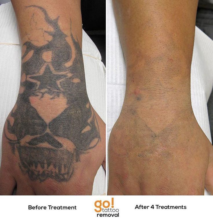 17 best images about tattoo removal in progress on for Tattoo turned black after laser