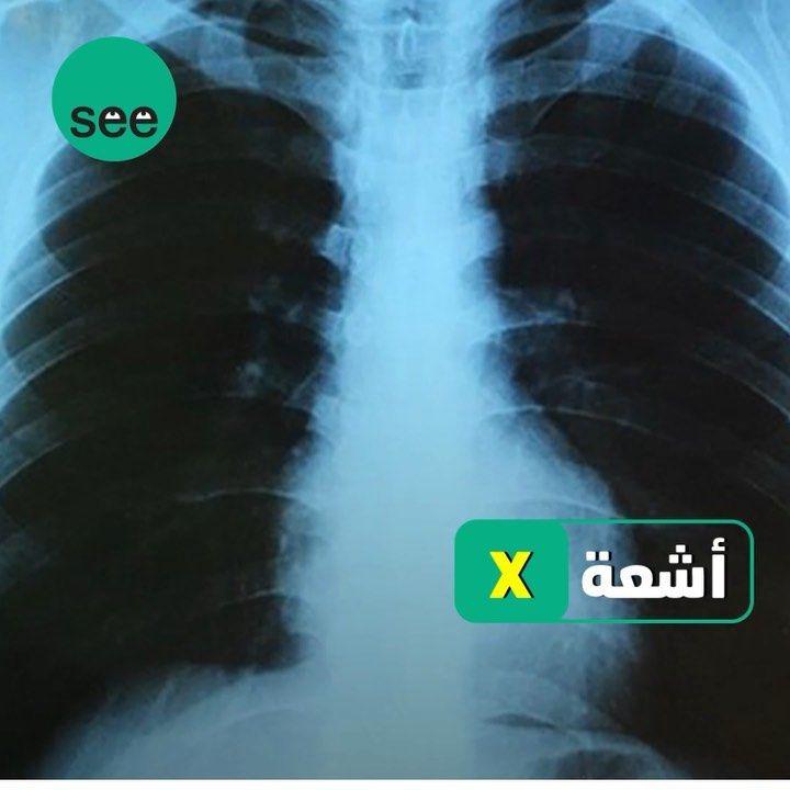 2 238 Likes 15 Comments See عربي Seeonar On Instagram في مثل هذا اليوم عرض لأول مره جهاز الأشعة السينية الأشعة التي شكلت ثورة في مجا