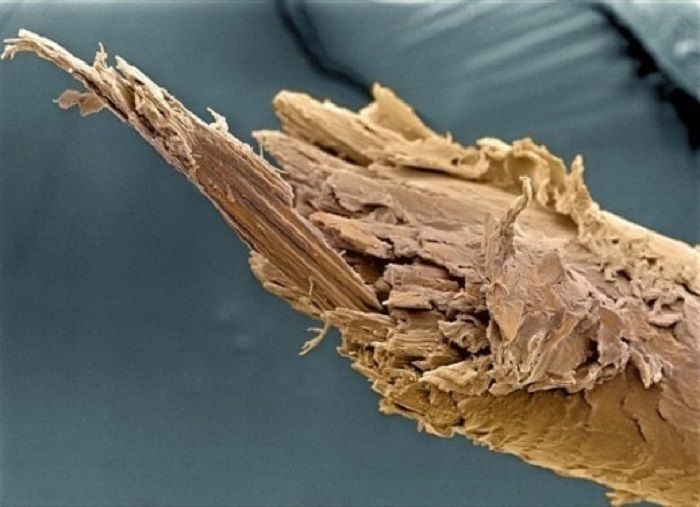 Impressive Microscopic Images | Science & Tech - BabaMail