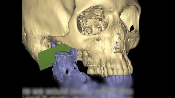 3D Printing is Revolutionizing Facial Reconstructive Surgery.