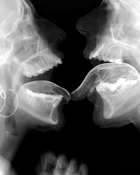 Tongues: Skull, Artist Wim, Wim Delvoye, Photography, X Ray Art, Sex Rays, French Kiss