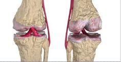 Os melhores remédios naturais para a regeneração da cartilagem do quadril e dos joelhos