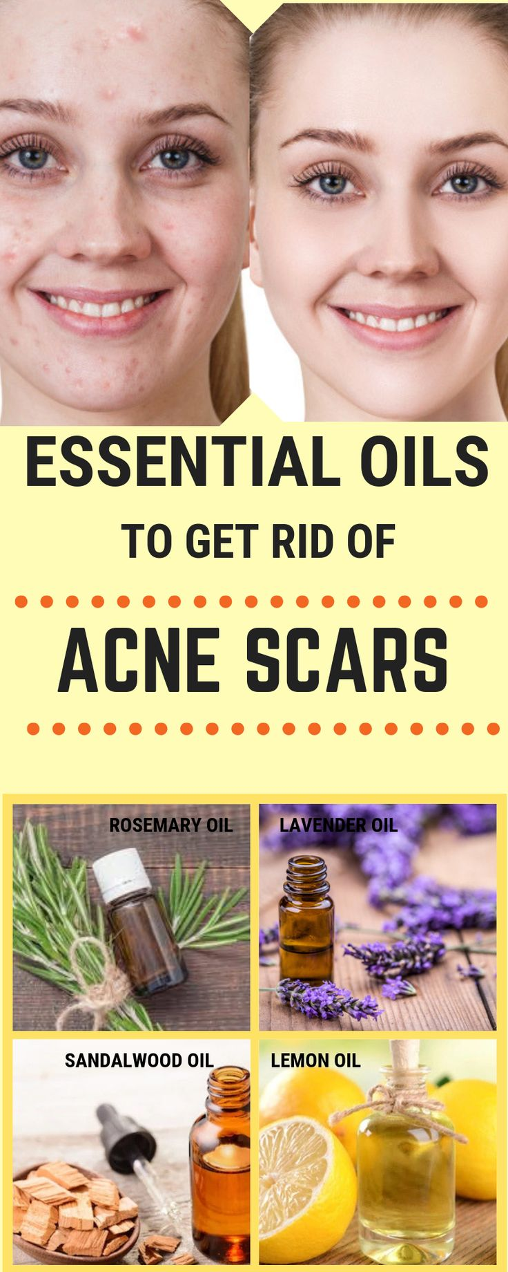 Oils that will erase all your acne scars like MAGIC