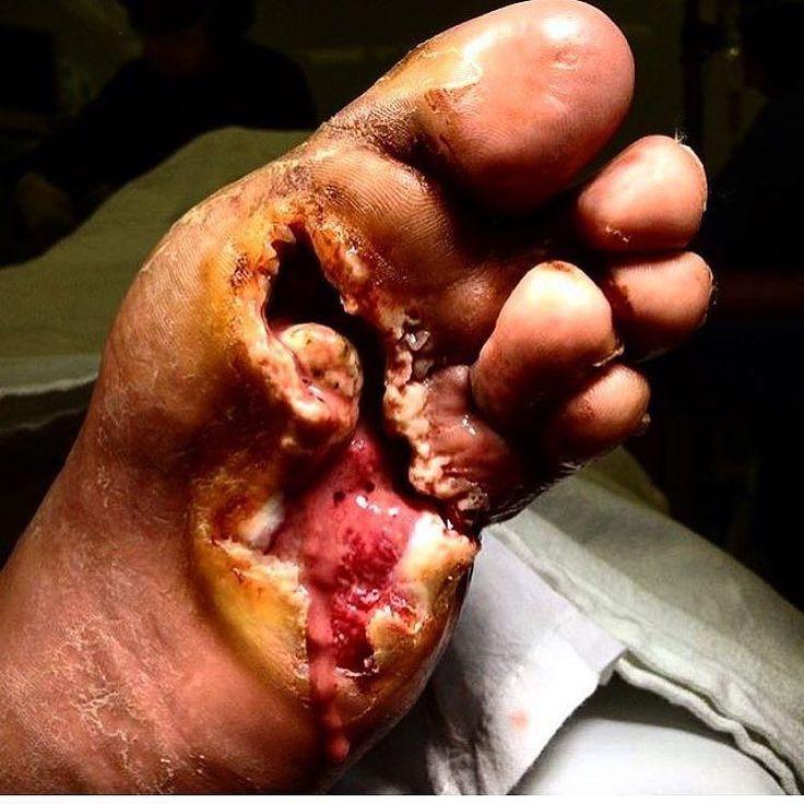 """Este paciente se presentó en la sala de emergencias con una """"herida del pie"""". Cuando la enfermera retira los zapatos del paciente esto es lo que encontraron. Las reclamaciones de los pacientes que nunca han tenido ningún tipo de dolor. Esto comenzó a desarrollarse como una úlcera diabética que no recibió tratamiento. El tratamiento en esta etapa es lo que se llama una amputación transmetatarsiana que básicamente es cuando el cirujano corta frente a la mitad delantera del pie. Esta cirugía se…"""