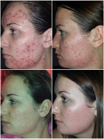 After trying everything - Kiera found Jeunesse's LUMINESCE skincare range & her self confidence- im so happy to be selling products that change peoples lives! get yours today!!  http://www.marysam.jeunesseglobal.com/products.aspx?p=LUMINESCE