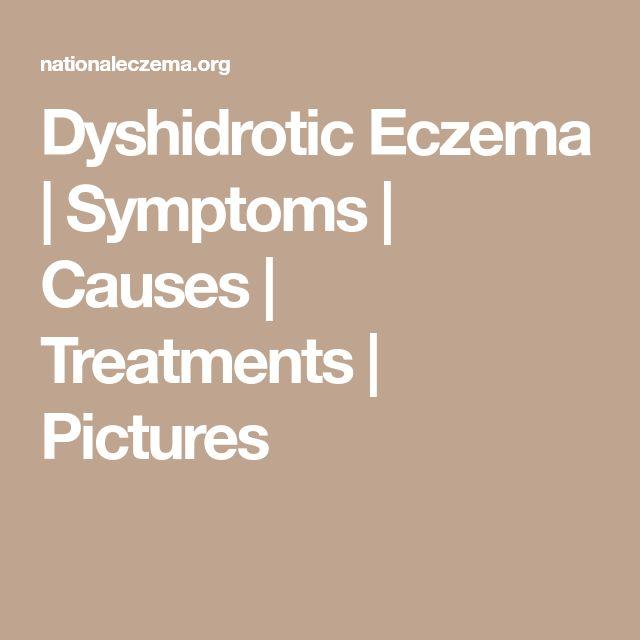 Dyshidrotic Eczema | Symptoms | Causes | Treatments | Pictures