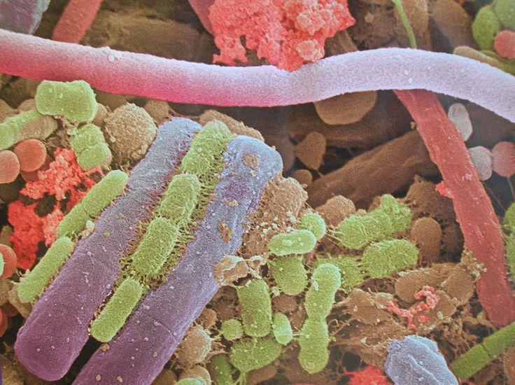 AIRLIFE te pregunta  ¿qué es una bacteria? Las bacterias son organismos unicelulares microscópicos, sin núcleo ni clorofila, que pueden presentarse desnudas o con una cápsula gelatinosa, aisladas o en grupos y que pueden tener cilios o flagelos. La bacteria es el más simple y abundante de los organismos y puede vivir en tierra, agua, materia orgánica o en plantas y animales.