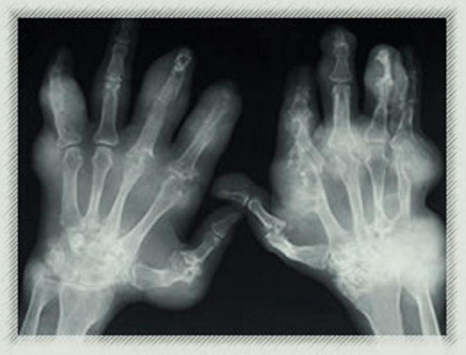 Federal Regulators to Decide the Fate of Experimental Drugs Linked to Bone Decay, Joint FailureChronic Pain, Common Symptoms, Teenagers Arthritis, Rheumatoid Arthritis, Fibromyalgia Pain, Bones Decay, Back Pain, Rheumatic Diseas, Public Health