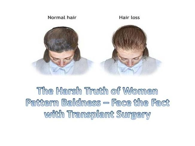 It's not only men, women also suffer from hair loss problem. The severity of their problems is more than men. Go through the presentation to understand specific reasons for hair loss issues, find solution to this problem and more.