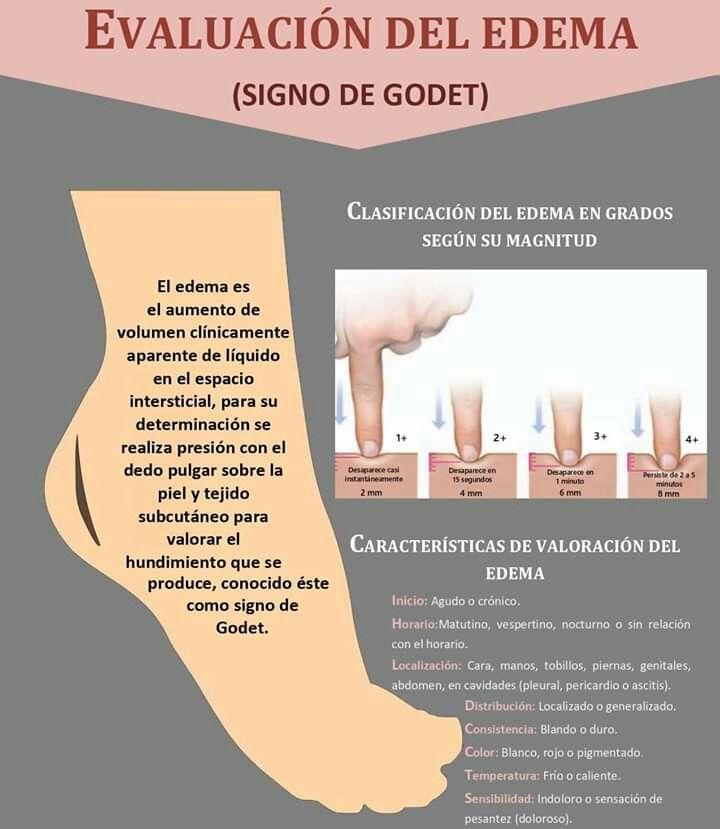 sensación de liquido frío en las piernas