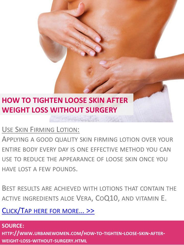 How to tighten loose skin after weight loss without surgery - Use skin firming lotion - Click for more: http://www.urbanewomen.com/how-to-tighten-loose-skin-after-weight-loss-without-surgery.html