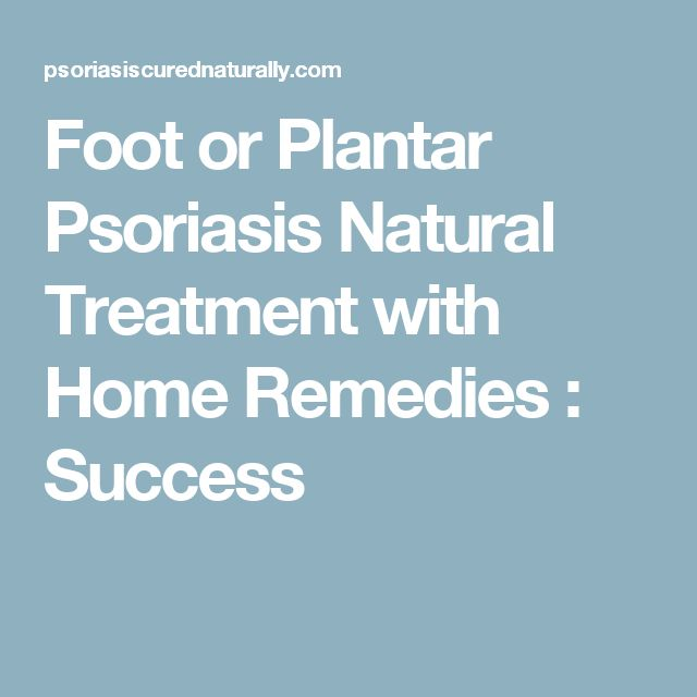 Foot or Plantar Psoriasis Natural Treatment with Home Remedies : Success