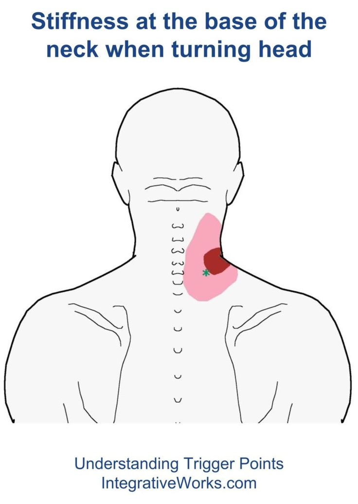 51 Best Images About Shoulder Trigger Point Pain On