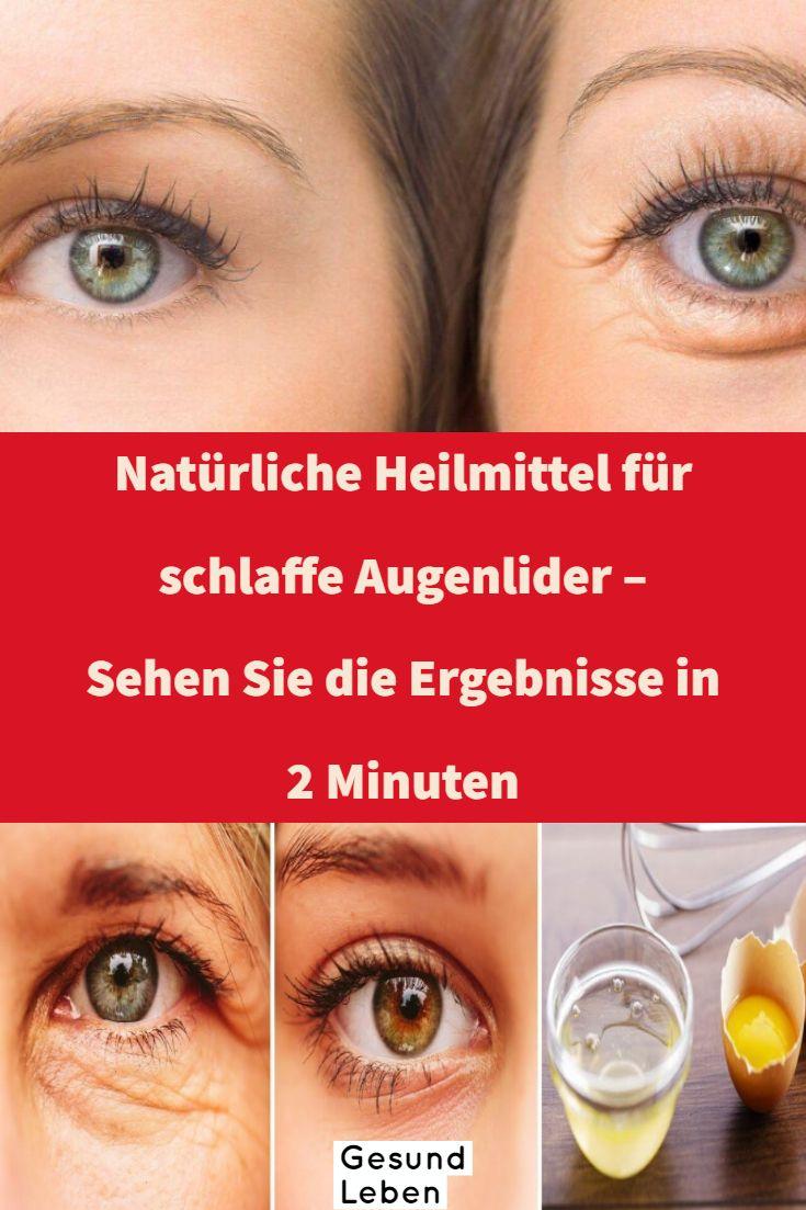 Natürliche Heilmittel für schlaffe Augenlider – Sehen Sie die Ergebnisse in 2 Minuten
