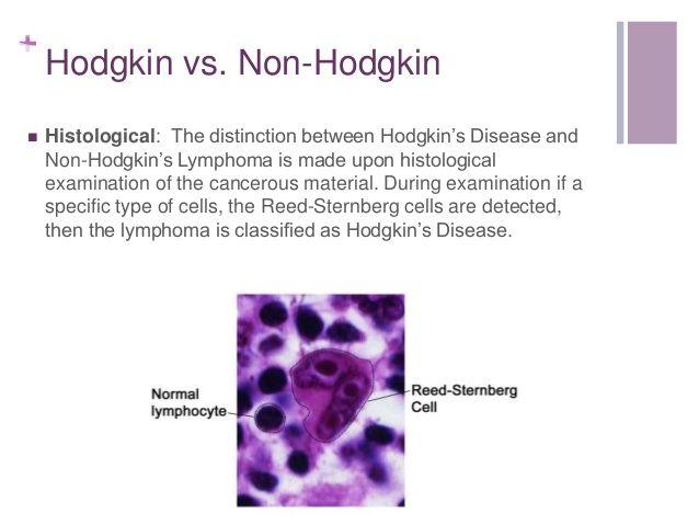 Pediatric Hodgkin's Lymphoma   Non Hodgkin Disease non hodgkin lymphoma