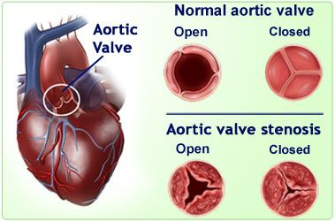This is the CHD Ky has. A unicuspid aortic valve stenosis, so instead of three valves he has one.