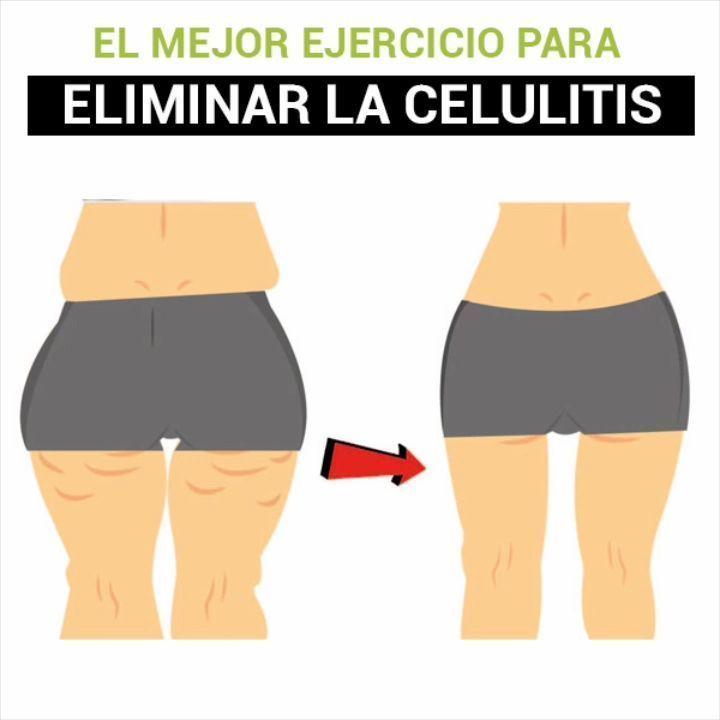 Adrian Yepez Fitness S Instagram Post Este Es El Mejor Ejercicio Para Eliminar La Celulitis Tener Un Músculo Atrofiado Es Una De Las Razones Por Swimwear