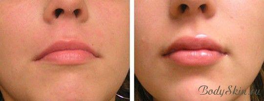 сделать губы пухлыми фото до и после