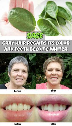 Sage – gray hair regains its color and teeth become whiter. Discover beauty recipes behind this plant