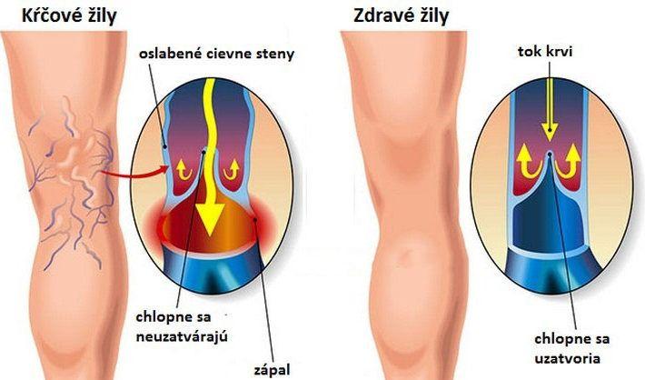Kŕčové žily sú nočnou morou zrejme každej ženy, pretože robia nohy neatraktívnymi. Navyše, často spôsobujú aj bolesti asilné nepohodlie. Nejedná sa tak len okozmetický, ale aj pomerne vážny zdravotný problém. Dnes vám prezradíme jednu prírodnú látku, oktorej sa vie len málo, avšak na kŕčové žily
