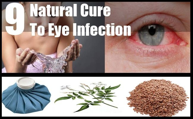 Top 9 Natural Cures For Eye Infection