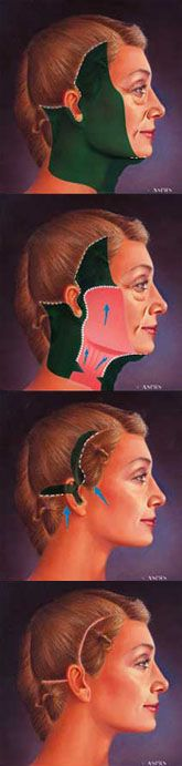 Facelift / Face Lift - mini & full - along with a neck lift - by Austin Plastic Surgeon