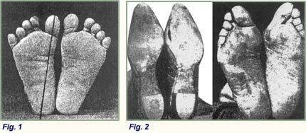 barefoot canada