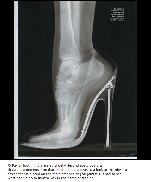 This is the truth.....Our feet are not meant to be in stilletos, damn you beauty why do you have to hurt?
