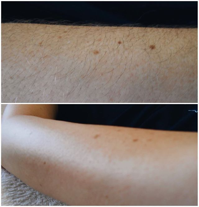 Get #sugared! #Beforeandafter of arm #sugaring and look at the difference!! After a #hairremoval #treatment that also works as an exfoliant, your skin is left hairless and #glowing.
