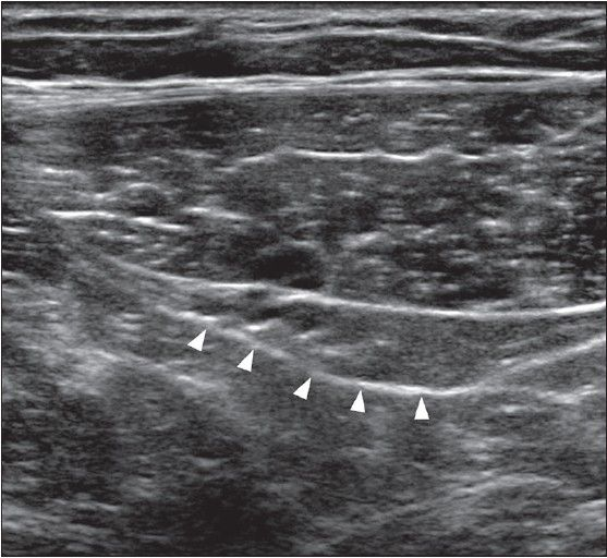 Anatomy - Inguinal Region - Superior Aspect of Inguinal Canal - Transverse USG image. The inferior epigastric vessels have emerged from the right rectus abdominis and are traveling posterolaterally toward their origin. A soft tissue bulge (arrowheads) is seen deep to the rectus, representing the superior aspect of the inguinal canal.