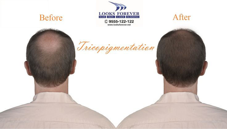 #Tricopigmentation prevents #bald areas of the #scalp, dispersed by thinning of #hair & hair #loss/scarring, microscopic deposits of #pigment in the tissue is injected and this #non-surgical treatment is called #Tricopigmentation. To create an optical coverage, simulation of natural #hair bulbs are represented in this technique. For perfect replication of the natural #hair pattern and reflection, #dot technique and the natural ash color is effective. For Details bit.ly/2f7npwc +91 9555122122