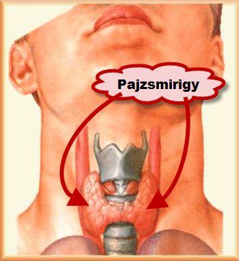 Pajzsmirigy gyakori betegségei: Graves-kór, golyva, göbök