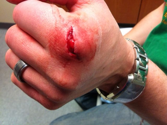 how to take care of a deep cut without stitches