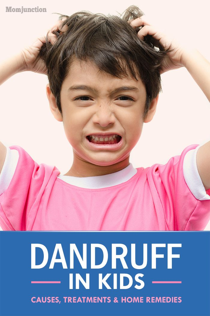 Does your child complain of an itchy scalp? This can be due to dandruff(seborrhea). Read the causes of dandruff in kids and also treatments & home remedies.