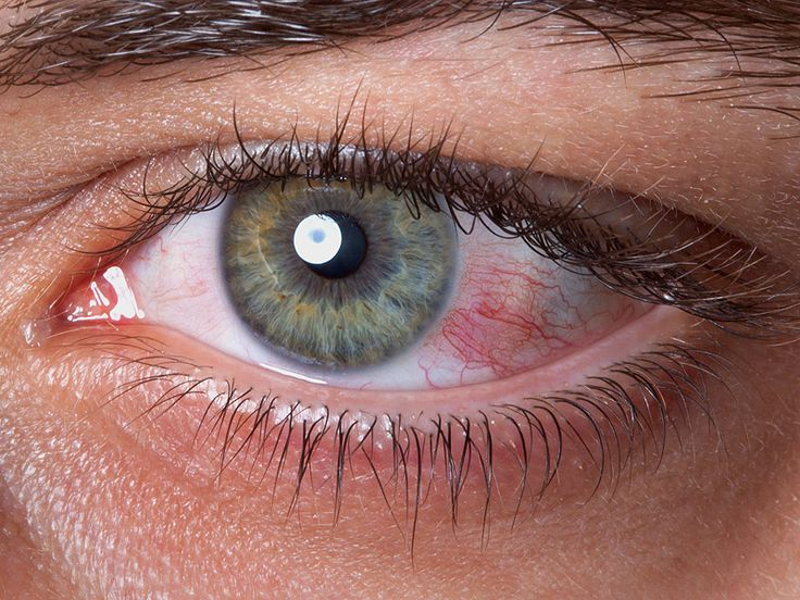 Are scleral lenses an effective treatment option for patients with severe dry eye syndrome?