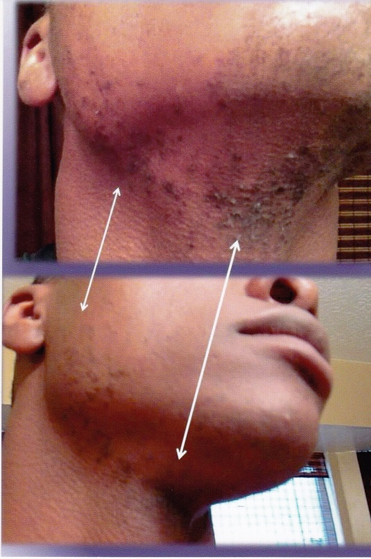 What SkinCerity can do for Acne, Shave Bumps and more!