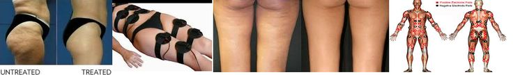 Ultra tone for Cellulite and Slimming 45 Minute with Micro-pulse provides effective stimulation of the superficial muscles, the high frequency variations of the exercise cycles increase blood flow and helps to reduce the fatty deposits of cellulite. Results will be seen after just one treatment , for full reduction of cellulite a course of 10-15 treatments, three times a week is ideal.