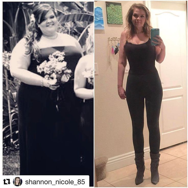 "Today's InspirWeighTion from TheWeighWeWere.com {Link in bio} via REPOST @shannon_nicole_85  #transformationtuesday post! Well it's been 7 weeks since my #tummy tuck! And I'm so happy! No more skin hidden under my pants! I feel amazing! Best decision of my life was to take over my health! Please excuse the hair and make-up it was 2am for the new photo! Lol  HW 371  SW 281 CW 149  5'9""  #girlswholift #fitness #health #lifestylechange #transformation #majorweightloss #fattofit #motivation…"