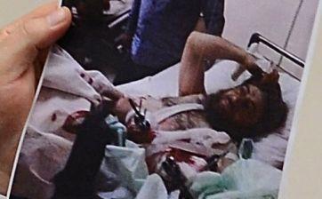 Hatay'da tedavi edilen kişinin (IŞİD komutanı) kaydı girilmemiş.
