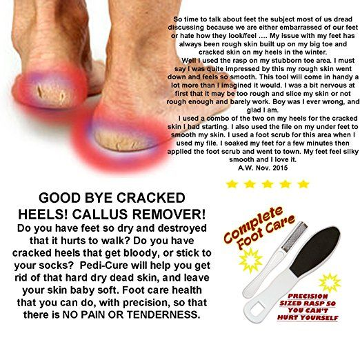 Amazon.com : Pedicure Rasp & Foot File-Remove Cracked Skin, & Reduce Calluses, Foot File Smooths To A Professional Finish .Precision Sized Rasp So You Can Reach All Angles & Curves. Home Pedicure Foot Care System : Beauty