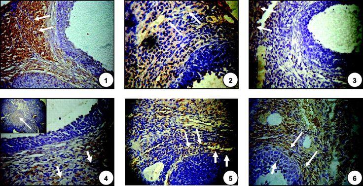 Cryptotanshinone reverses reproductive and metabolic disturbances ...