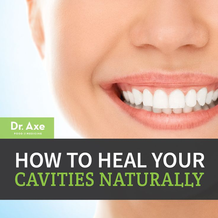 Heal Cavities Header 4 tbsp. Coconut Oil 2 tbsp. Baking Soda (aluminum free) 1 tbsp. xylitol or 1/8 tsp. stevia 20 drops peppermint or clove essential oil 20 drops trace  minerals or (calcium/magnesium powder)