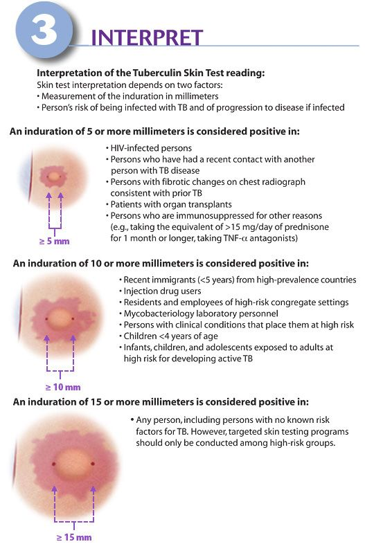 What Does Positive Vs Negative Look Like on a TB Test