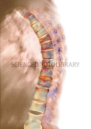 retrolisthesis and cause Retrolisthesis is the term used to define a degenerative and an acute spine condition in which a single vertebra gets displaced and moves backwards onto the vertebra lying immediately below it.