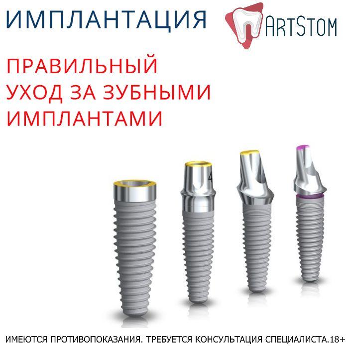 Перед тем как их установить, пациенты обычно интересуются всеми нюансами дальнейшего существования с обновленной улыбкой. Задают вопросы и о том, как долго будут служить приживленные зубы, как за ними ухаживать? Что нужно делать, чтобы импланты служили дольше и не возникало воспалительных процессов? ☝Главной, как и прежде, остается гигиена полости рта. Чистка состоит из 3 стадий: ⭕собственно очищения зубной щёткой; ⭕полоскания (ирригации); ⭕профессиональной гигиены 1 раз в 6 месяцев…