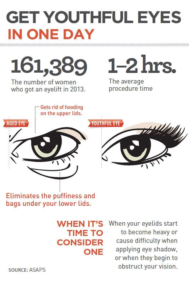 Eyelid lift is a very straightforward procedure with little downtime. It can dramatically improve the appearance of tired eyes. http://www.thecenterforcosmeticsurgery.net/cosmetic-surgery-procedures/blepharoplasty.cfm