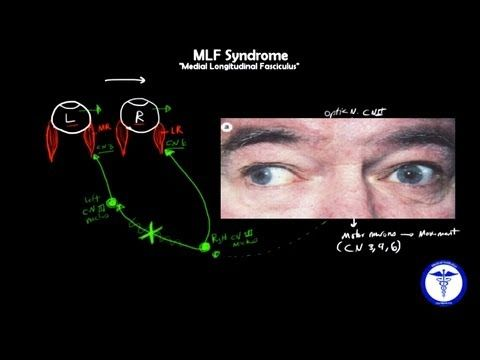 ▶ MLF syndrome - Internuclear Ophthalmoplegia, MADE EASY - YouTube