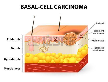 cáncer de piel. El carcinoma de células basales o el cáncer de células basales (BCC). Representación esquemática de la piel. Los melanocitos están también presentes y sirven como la célula de origen para el melanoma. La separación entre la epidermis y la dermis se produce en la zona de la membrana basal.