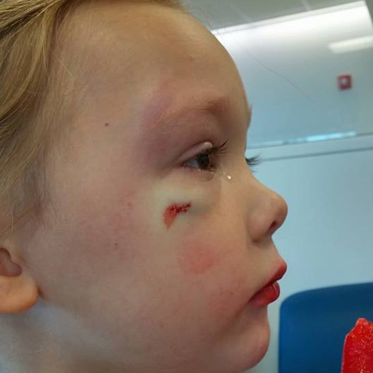 Why This Mom's Message to a Hospital Employee Has Gone Viral After Daughter Needs Stitches